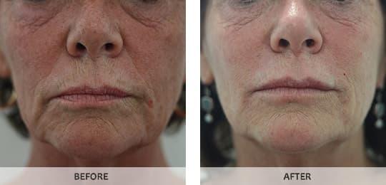 Lip Augmentation Enhancement Enlargement Expert Instant