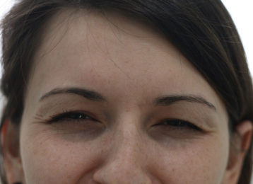 botox-female-after-1