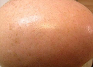 Brown age spots removal male after 2