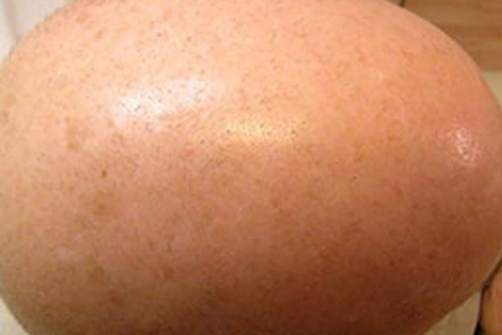 Brown, Age Spots, Pigmentation, Sun Spot Removal - NYC