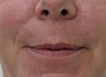Lip augmentation female before 5