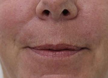 Lip augmentation female before 5