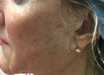 Sculptra injections jaw line after