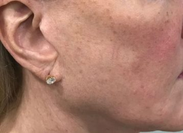 Sculptra injections jawline before