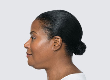 Kybella Chin fat in men and women