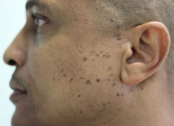 Brown age spots removal male before 1