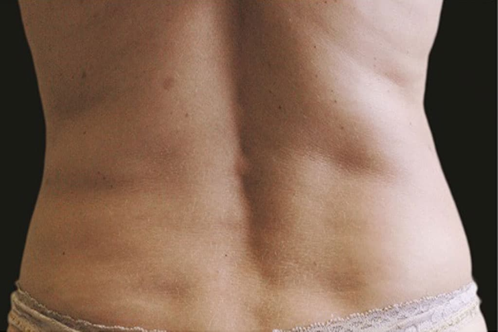 coolsculpting-female-after-1