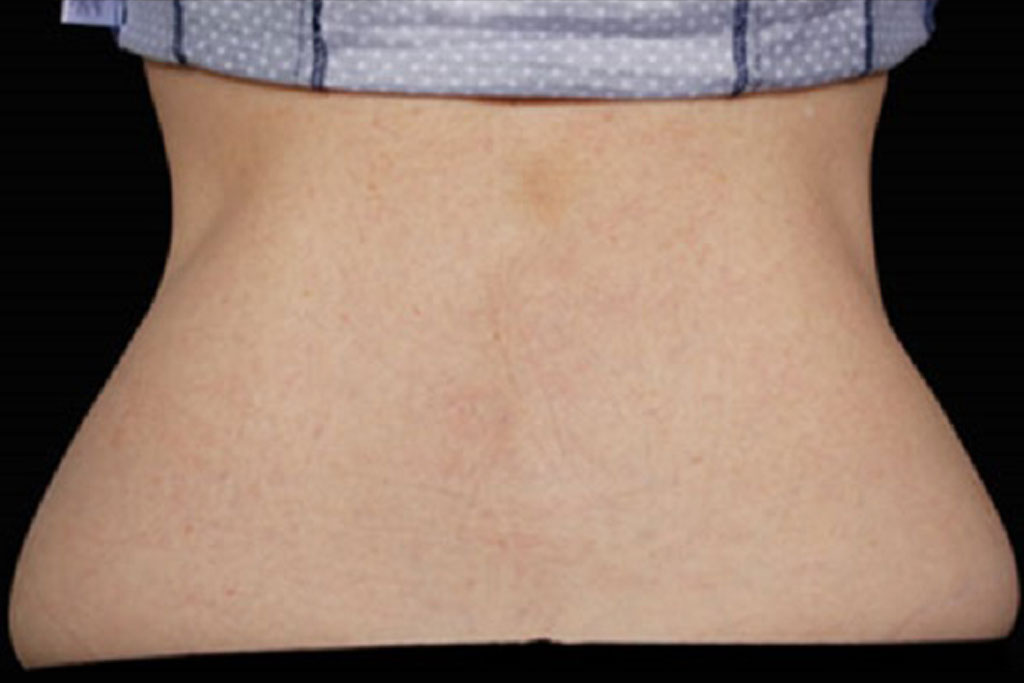 coolsculpting-female-after-2