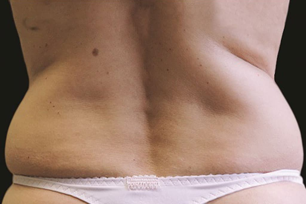 coolsculpting-female-before-1