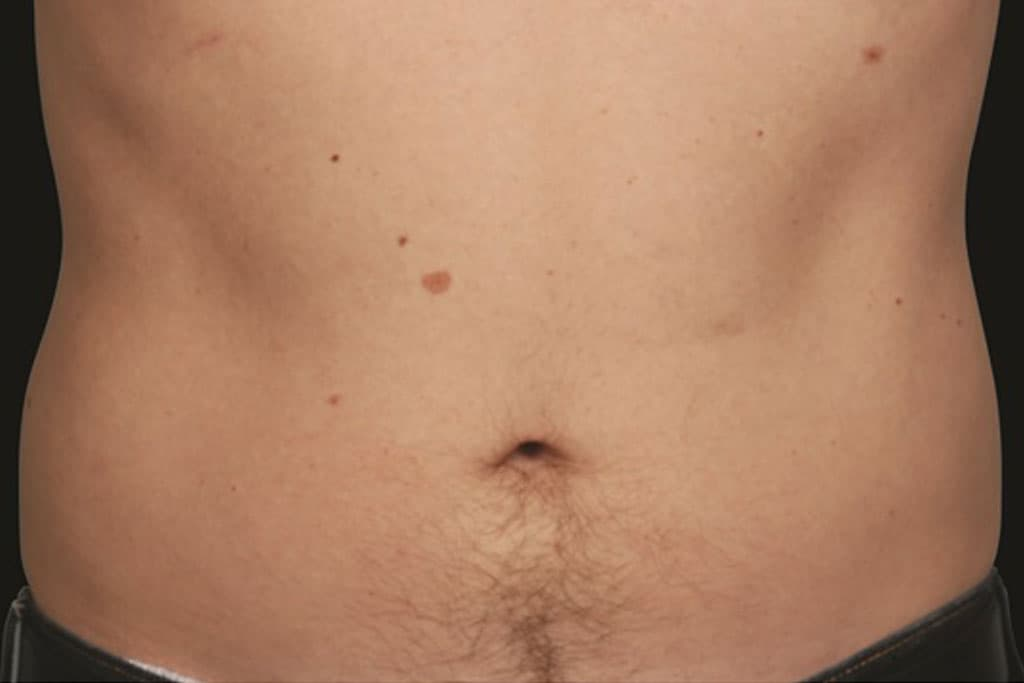 coolsculpting-male-after-1