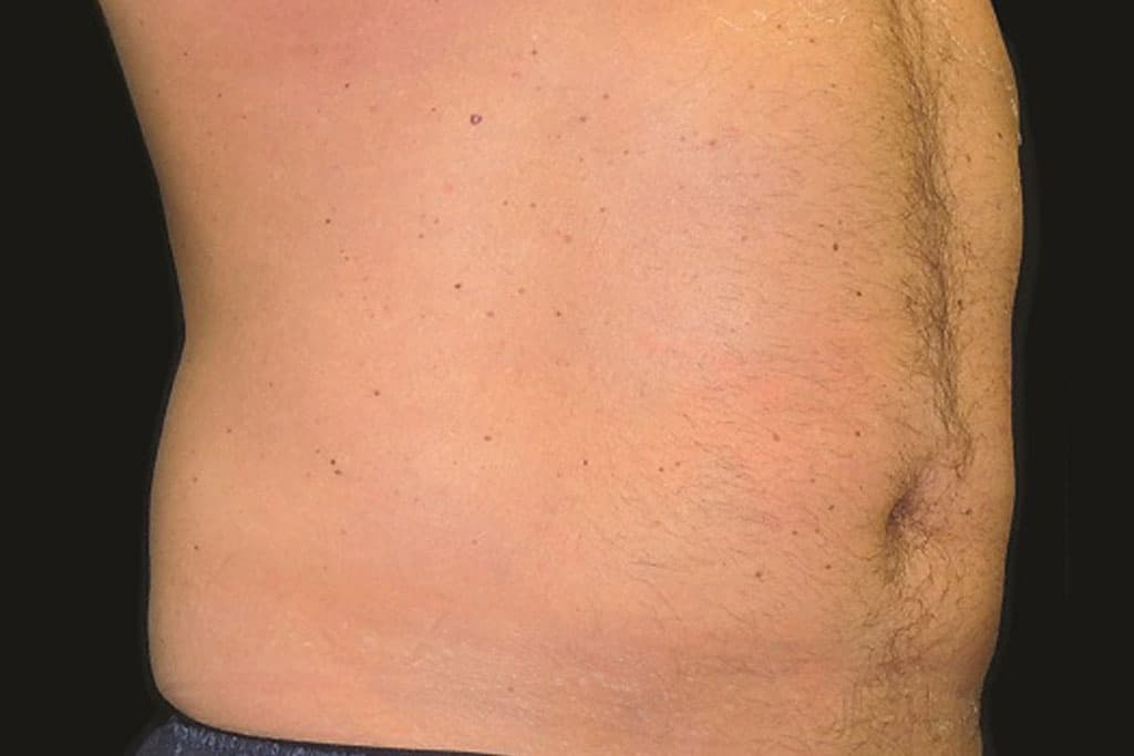 coolsculpting-male-after-2