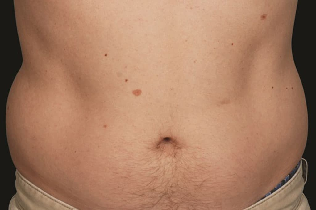 coolsculpting-male-before-1