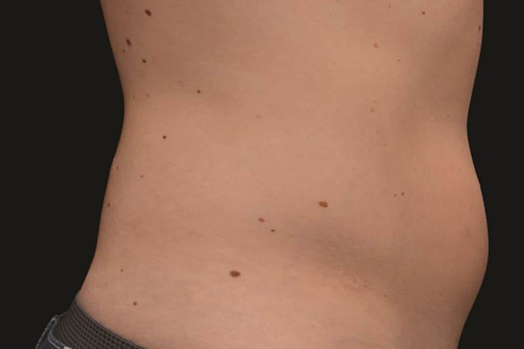 coolsculpting-male-before-3