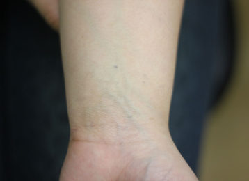 Laser tattoo removal female after 2