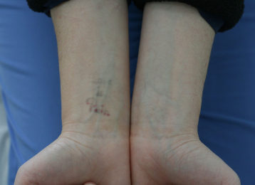 Laser tattoo removal female after 4
