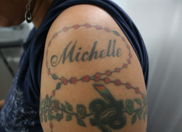 Laser tattoo removal female before 1