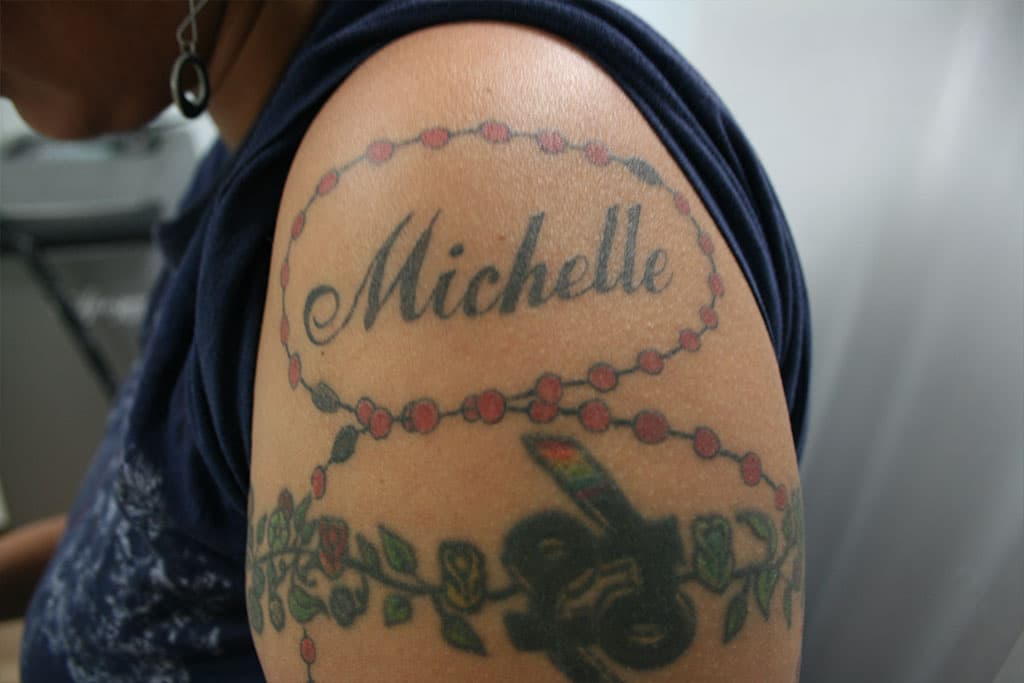 Laser Tattoo Removal in NYC, Westchester & Bronx by Studio ...
