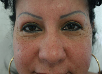Laser tattoo removal female before 5
