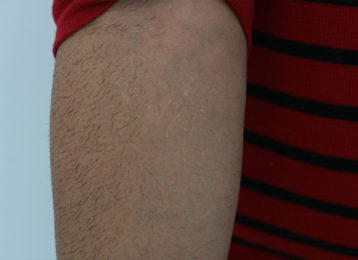 Laser tattoo removal male after 1