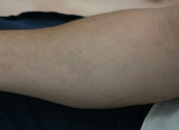 Laser tattoo removal male after 2