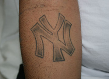 Laser tattoo removal male before 1