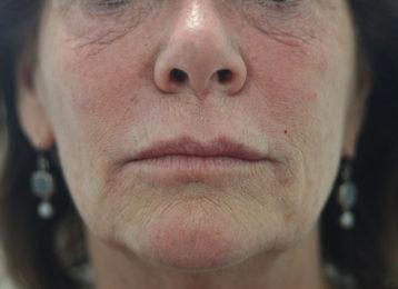 Lip augmentation female after 1