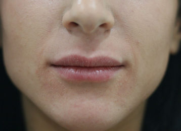 Lip augmentation female after 2