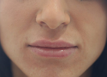 Lip augmentation female after 3