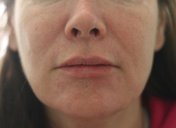 Lip augmentation female after 4