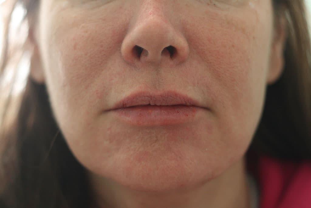 Lip Augmentation Enhancement Enlargement Expert In Nyc