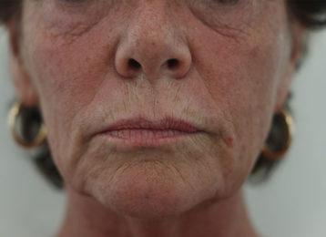 Lip augmentation female before 1