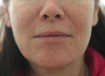Lip augmentation female before 4