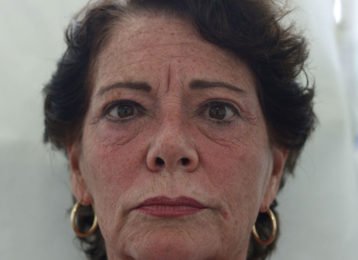 botox-female-after-2