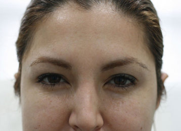 botox-female-after-3