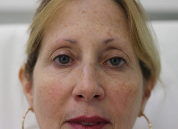 botox-female-after-4
