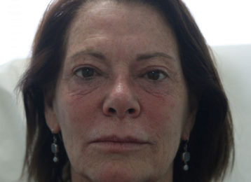 botox-female-before-2