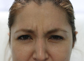 botox-female-before-3