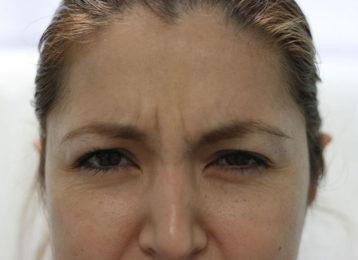 botox-female-before-3