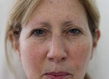 botox-female-before-4