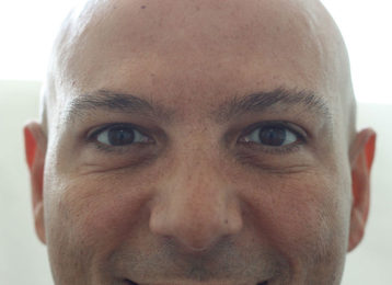 botox-male-after-2