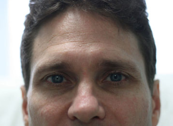 botox-male-before-1