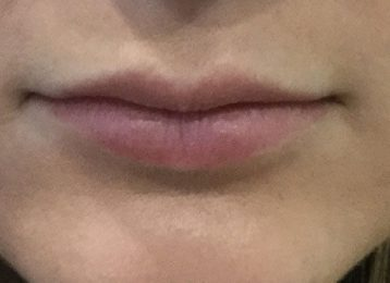 Juvederm Lips Augmentation - Before