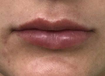 Juvederm Lips Augmentation - After