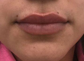 Juvederm Lips - After