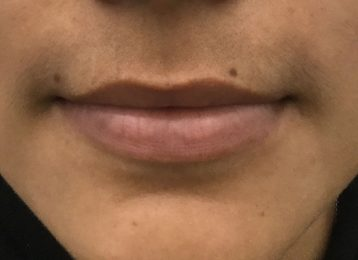 Juvederm Lips - Before