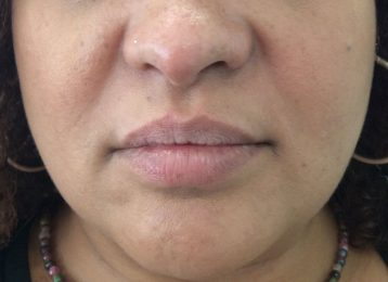 Juvederm Lips Injections - After
