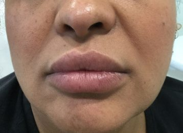 Juvederm Lips Injections - Before