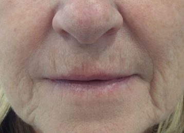 Juvederm Marionette Lines - Before