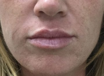 Juvederm Nasolabial Folds Lips - After