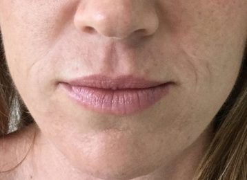 Juvederm Nasolabial Folds Lips - Before